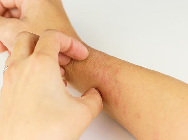 リウマチや膠原病の症状2